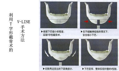 图解:从国字脸到小v脸的递变过程