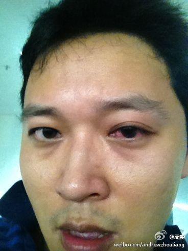 周亮微博自曝受伤图 自称被江苏球迷袭击