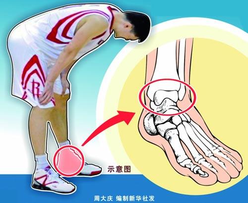 姚明伤病全回顾:左脚数次重伤近三年四次大手术