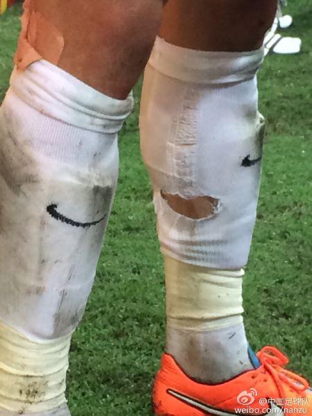 赛后,张琳�M球袜撕磨出了一个大大的洞