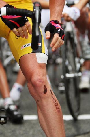 图文-环法自行车赛第12赛段结束埃文斯腿部受伤