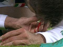 狮王积极拼抢反受伤 鼻梁遭撞血染绿茵
